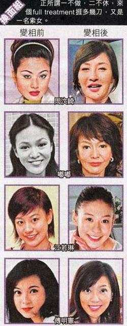 惊爆香港明星整容变脸照 - 今方 - 今方的博客